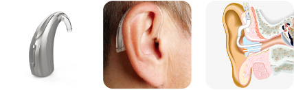 BTE(귀걸이형)